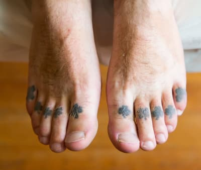 The Guardian: The Rise of Tattoo Removal